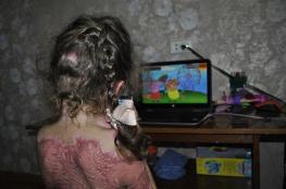 تحذير ..اصابة طفلة بحروق بالغة نتيجة لعبة على الانترنت