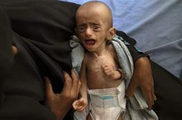 في اليمن ...كل 10 دقائق يموت طفل بسبب نقص الغذاء