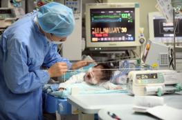 وسط حالة من الذهول ..ولادة طفل بدون عينين وأنف وجزء من الجمجمة