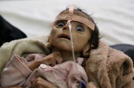 الأمم المتحدة تحذر من مجاعة تهدد الملايين في اليمن