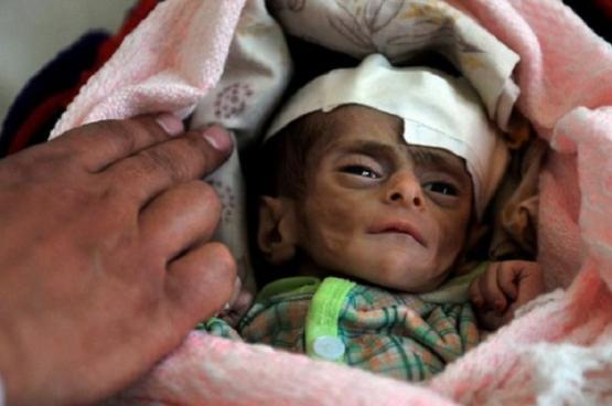 الامم المتحدة : مقتل 100 طفل يمني خلال الشهر الماضي