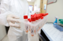 الصحة: 34 إصابة بفيروس كورونا في فلسطين اليوم