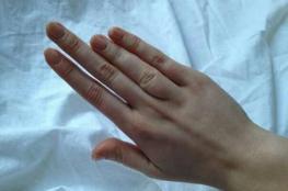 أصحاب الأصابع الطويلة أقل عرضة للوفاة بكورونا