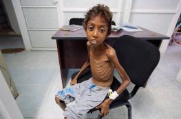 الصليب الأحمر: انهيار صحي باليمن وتفش مريع للكوليرا