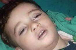 وفاة طفل من الخليل  جراء بلعه حبة لوز