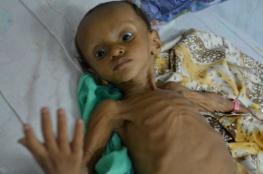 ارتفاع وفيات الكوليرا في اليمن إلى 605