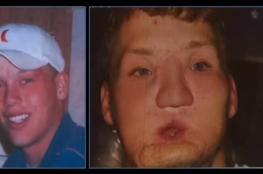 عملية جراحية لإعادة زرع وجه كامل بأميركا
