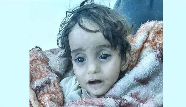 """""""إيمان"""".. طفلة سورية هربت من جحيم الحرب في  ادلب فقتلها البرد الشديد"""
