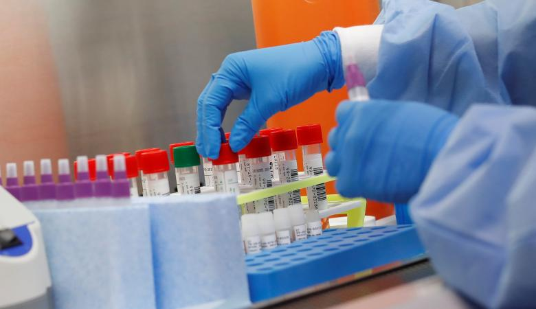 كورونا عالميا : 943 الف وفاة و30 مليون اصابة بالفيروس