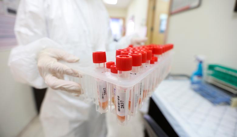 مرض فيروس كورونا (كوفيد-19): سؤال وجواب