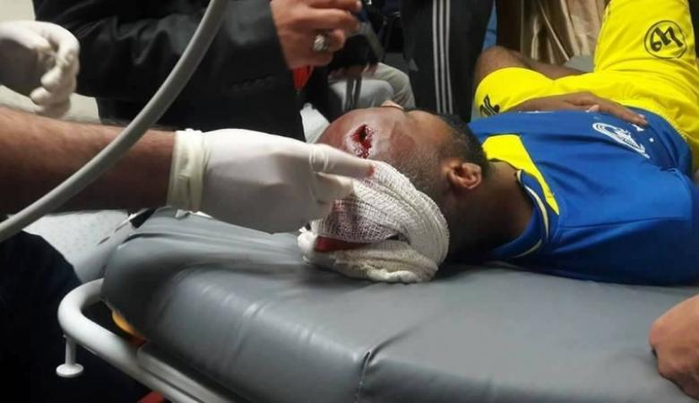 إصابة خطيرة للاعب شباب جباليا بحجر ألقي من الجماهير