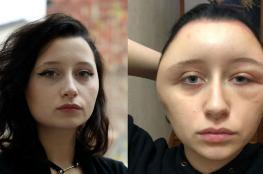 """كادت تقتلها : صبغة شعر تحول وجه فتاة إلى كرة مرعبة """"فيديو """""""