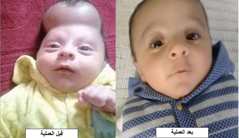 عملية جراحية نوعية في مستشفى المقاصد لطفل يبلغ من العمر 3 أشهر
