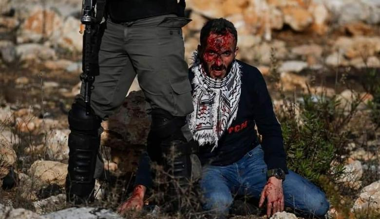 إصابتان بالرصاص والعشرات بالاختناق بمواجهات مع الاحتلال شمال البيرة