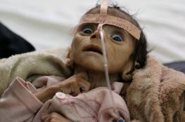 """الامم المتحدة : ارتفاع اعداد الوفيات في اليمن نتيجة مرض """" الدفتيريا """" الى 53"""