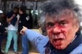 شاهد ..الجزائري المدافع عن المسلمات في اوروبا يغرق في دمائه