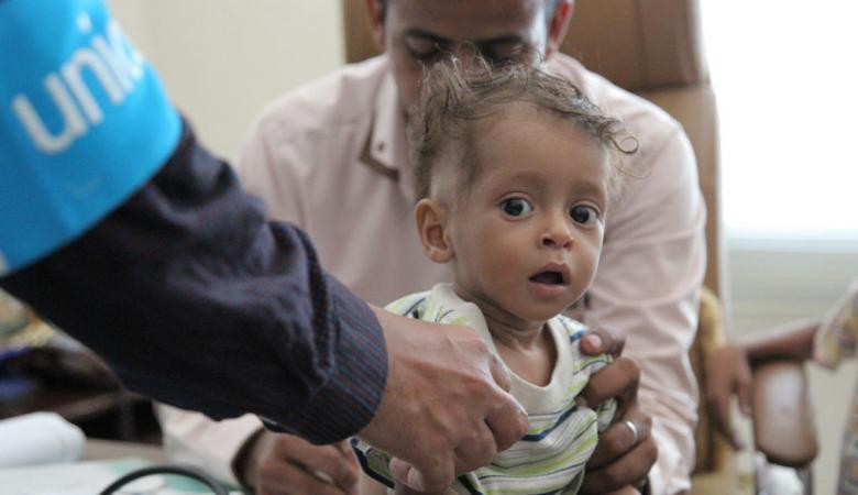 2.2 مليون طفل يمني يعانون من سوء التغذية الحاد