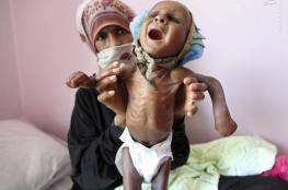 تقرير : 400 يمني قضوا بسبب الكوليرا في 2018