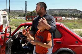 إصابة شاب من النبي الياس جراء دهسه من مستوطن