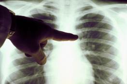 العلماء : علاج محتمل لسرطان الرئة