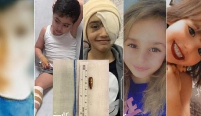 """""""الرصاص الطائش"""" يحصد أرواح طفلتين من القدس ويصيب 3 آخرين"""