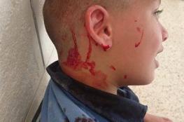 جدل في نابلس بعد إصابة طفل بجروح إثر سقوطه على أرض مدرسة جديثة البناء