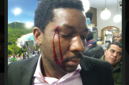 """امرأة تهاجم رجلاً أسوداً بالضرب: """"أنا بيضاء قد أقتلك ولن يحدث شيء"""""""