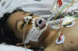 """استشهاد طفل متأثرا بجروحه خلال العدوان على غزة في العام """" 2014 """""""