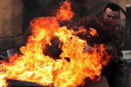 إصابة 5 شبان خلال مواجهات مع الاحتلال في العرقة غرب جنين