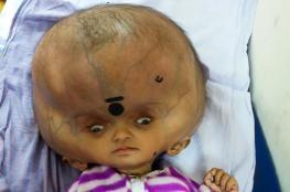 تعرف على الطفل صاحب الجمجمة الأكبر في العالم ..صور