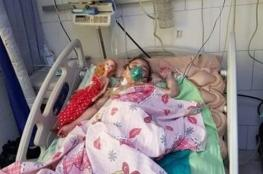بعد أن هزت القلوب وشغلت مواقع التواصل.. وفاة طفلة عذبتها جدتها
