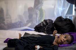 عودة انفلونزا االخنازير الى اليمن