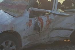 وفاة طفل شنقاً في غزة واصابة فتاة ومصرع سيدة في جنين بحادث سير