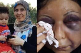 محكمة تصدر عقوبة بحق  الزوج البحريني الذي شوه وجه زوجته السورية