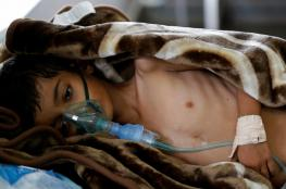 اليمن ..100 الف حالة اصابة بالكوليرا ووفاة نحو 800