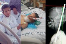 تفاصيل قصة الطفل الذي اخترق قضيب حديد رأسه دون أن يقتله في غزة