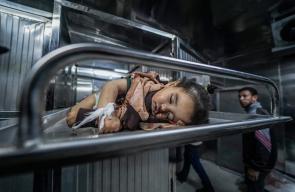استشهاد الطفلة صبا ابو عرار بعد استهداف منزلها في غزة