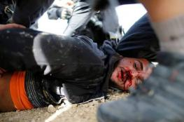 """""""أم الحيران"""".. وجه آخر للتطهير العرقي"""