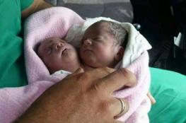 حالة نادرة في مدينة سورية.. ولادة طفل برأسين