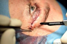 الكشف عن علاج جيني جديد  لنوع نادر من العمى