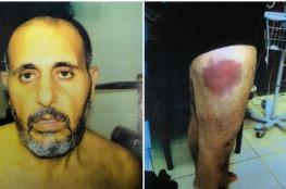 """صورة مروعة للأسير """"وليد خناتشة """" بعد تعرضه للتعذيب الشديد"""