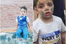 الثانية خلال سياعات ...وفاة طفل من قباطية بحادث دهس
