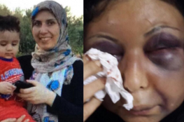 بالصور: تفاصيل اعتداء زوج على زوجته السورية وتشويه وجهها