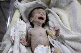 18 مليون يمني يعانون من الجوع والفقر جراء الحرب