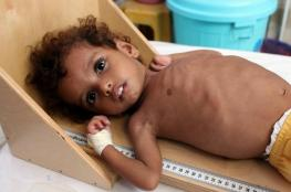 """الصليب الأحمر: اليمن يعاني من """"كارثة إنسانية"""""""