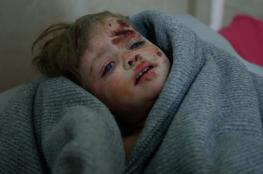 جرائم النظام السوري مستمرة في الغوطة وارتفاع القتلى المدنيين الى 250 شخصا