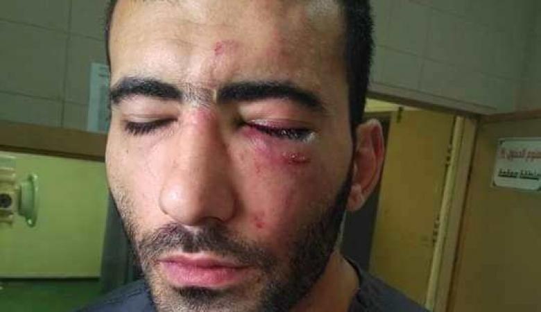 تفاصيل حادث الاعتداء على فني الاشعة بمستشفى الخليل