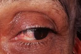 """مطالبات بتطبيق عقوبة """"العين بالعين"""" بحادثة اعتداء زوج على زوجته"""