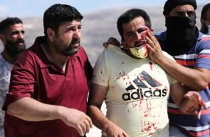 اصابات في مواجهات مع الاحتلال بعصيرة القبلية جنوب نابلس