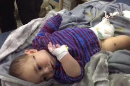 فيديو مؤثر لطبيب بريطاني يلتقي رضيعة عالجها في حلب (شاهد)